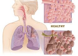 Normal_copd_versus_healthy_lung