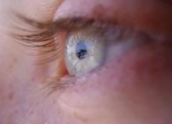 Normal_kindermisbruik_oog
