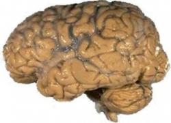 Normal_hersenen_hersens